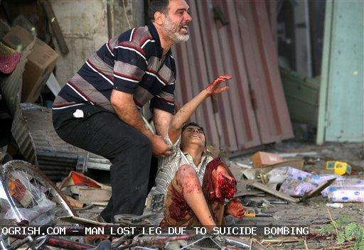 ogrish-dot-com-lost_leg_after_suicide_bombing.jpg